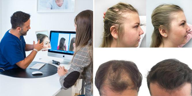 få tillbaka håret efter stress