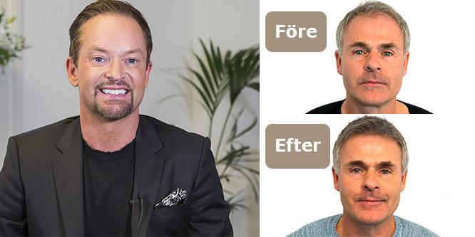 poseidon hårtransplantation pris