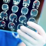 En av de vanligaste dödsorsakerna – så ofta drabbas en svensk av stroke