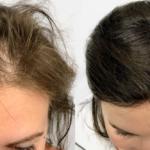 Tunt hår? Så kan du få tillbaka ditt hår – på 45 minuter