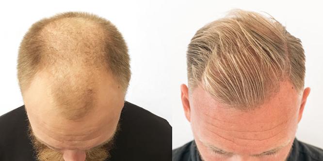 hur snabbt växer hår på huvudet